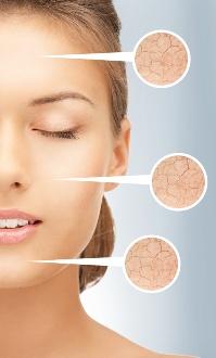 Bild:Niere-Lymphe-Haut Die Haut wird auch als Hilfsniere bezeichnet; körperpflege; lymph system